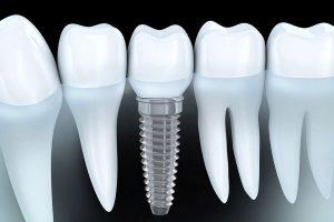 Tong Hop Kien Thuc Ve Implant Nha Khoa 4