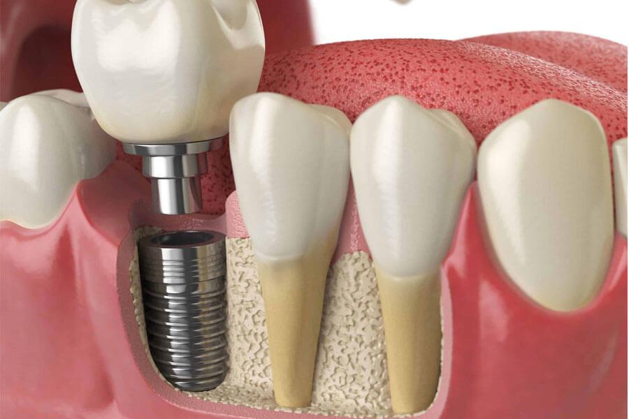 Cay Ghep Implant La Gi Cay Ghep Implant Co Nguy Hiem Khong 1