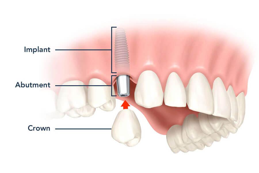 Cay Ghep Implant La Gi Cay Ghep Implant Co Nguy Hiem Khong 2