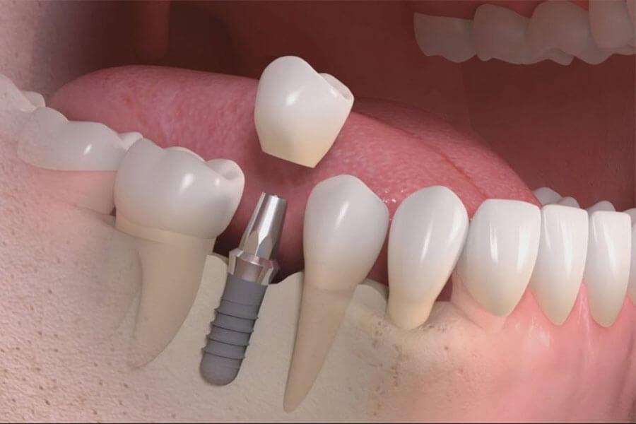 Cay Ghep Implant La Gi Cay Ghep Implant Co Nguy Hiem Khong 3