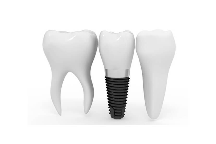 Cay Ghep Implant La Gi Cay Ghep Implant Co Nguy Hiem Khong 4