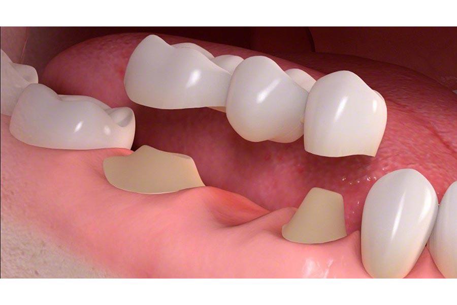 Bọc Răng Sứ Là Gì? Quy Trình Bọc Răng Sứ Như Thế