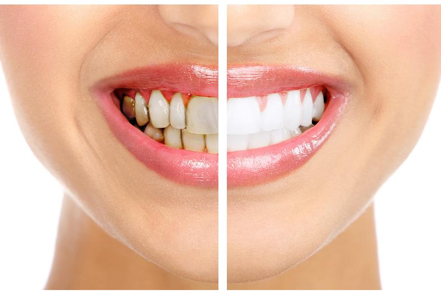 Chăm Sóc Răng Miệng Sau Khi Tẩy Trắng Răng