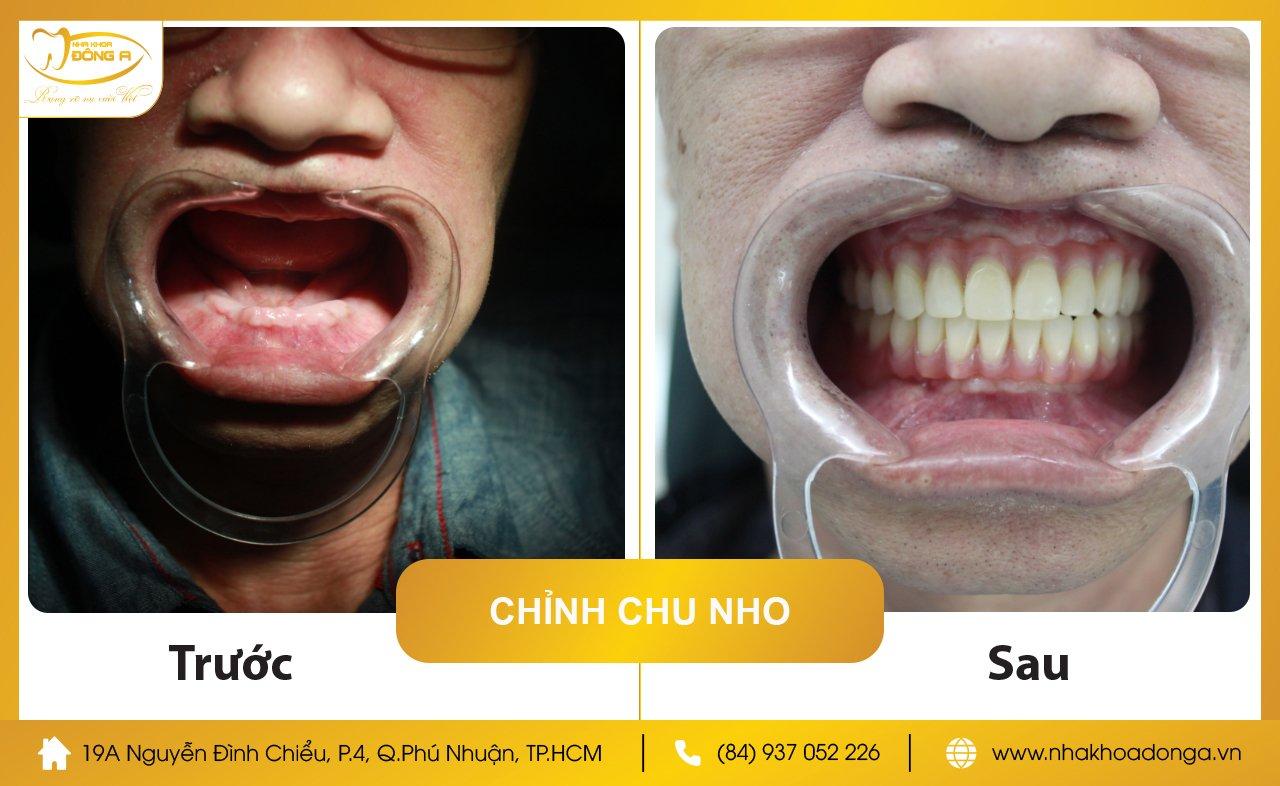 Chu Lam