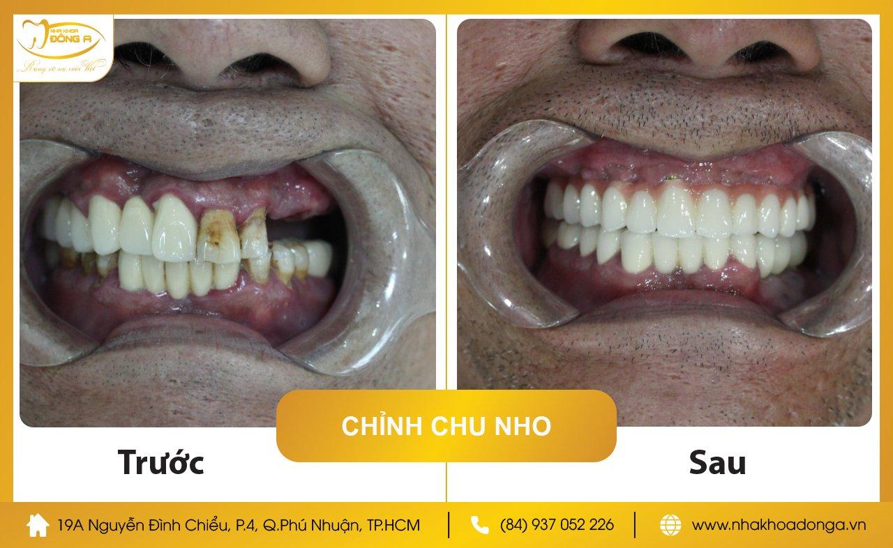Chu Nho