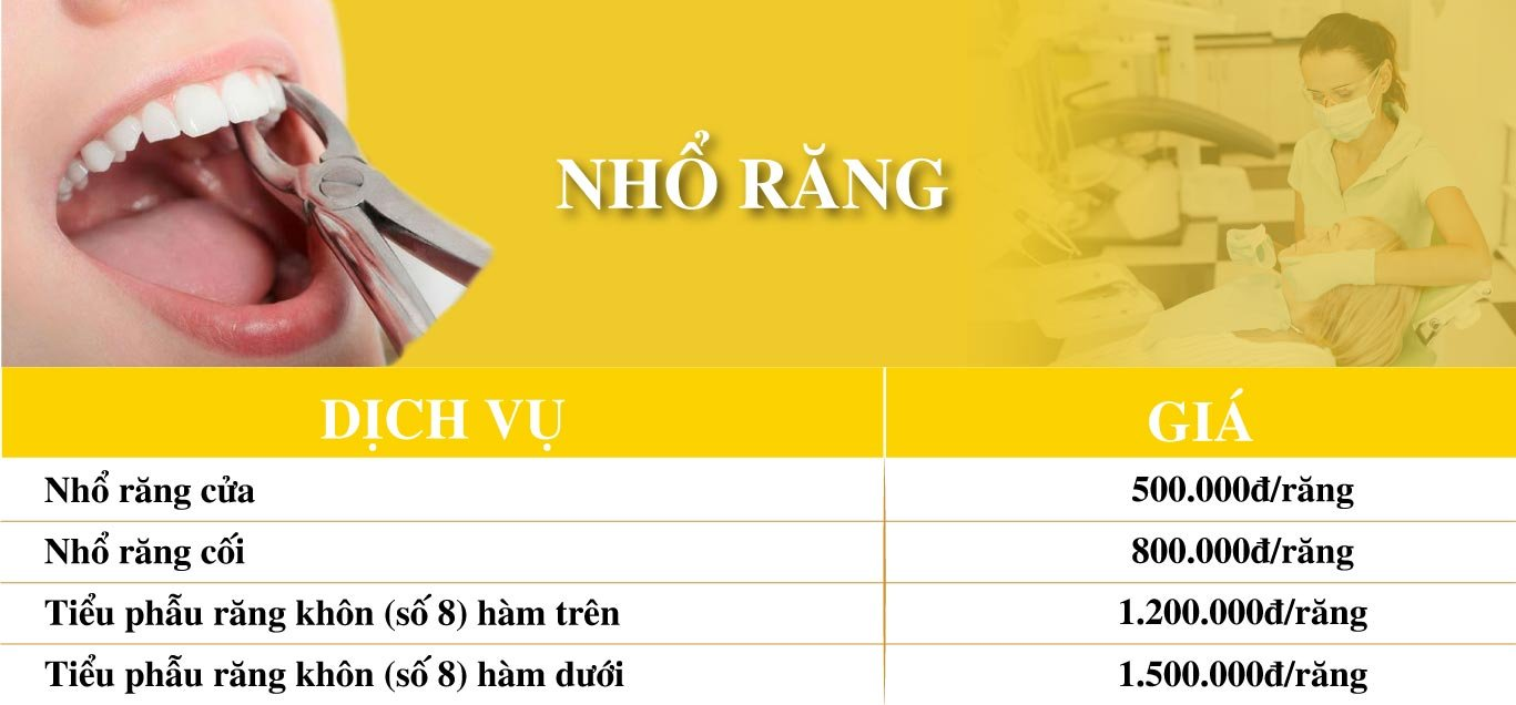 Dich Vu Nho Rang Nha Khoa Dong A