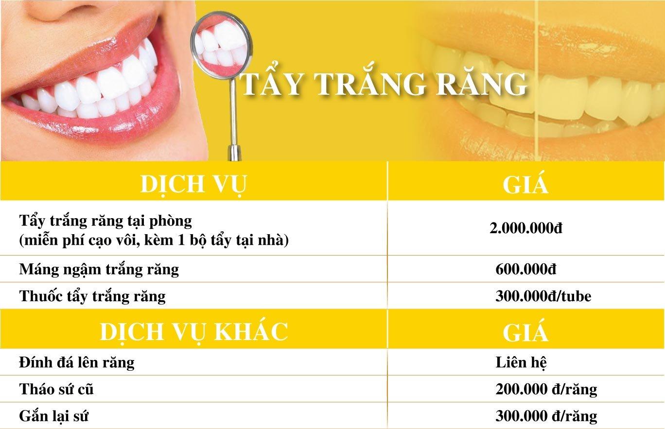 Dich Vu Tay Trang Rang Nha Khoa Dong A