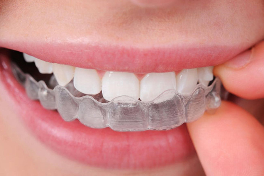 Keo Và Mảng Làm Trắng Răng