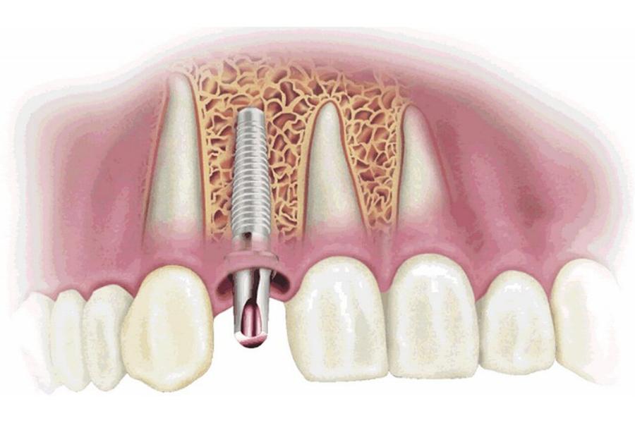 Nguyên Nhân Cấy Ghép Implant Thất Bại