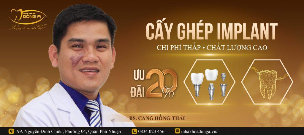 Bs Cang Hong Thai Trong Rang Implant Khuyen Mai 20%