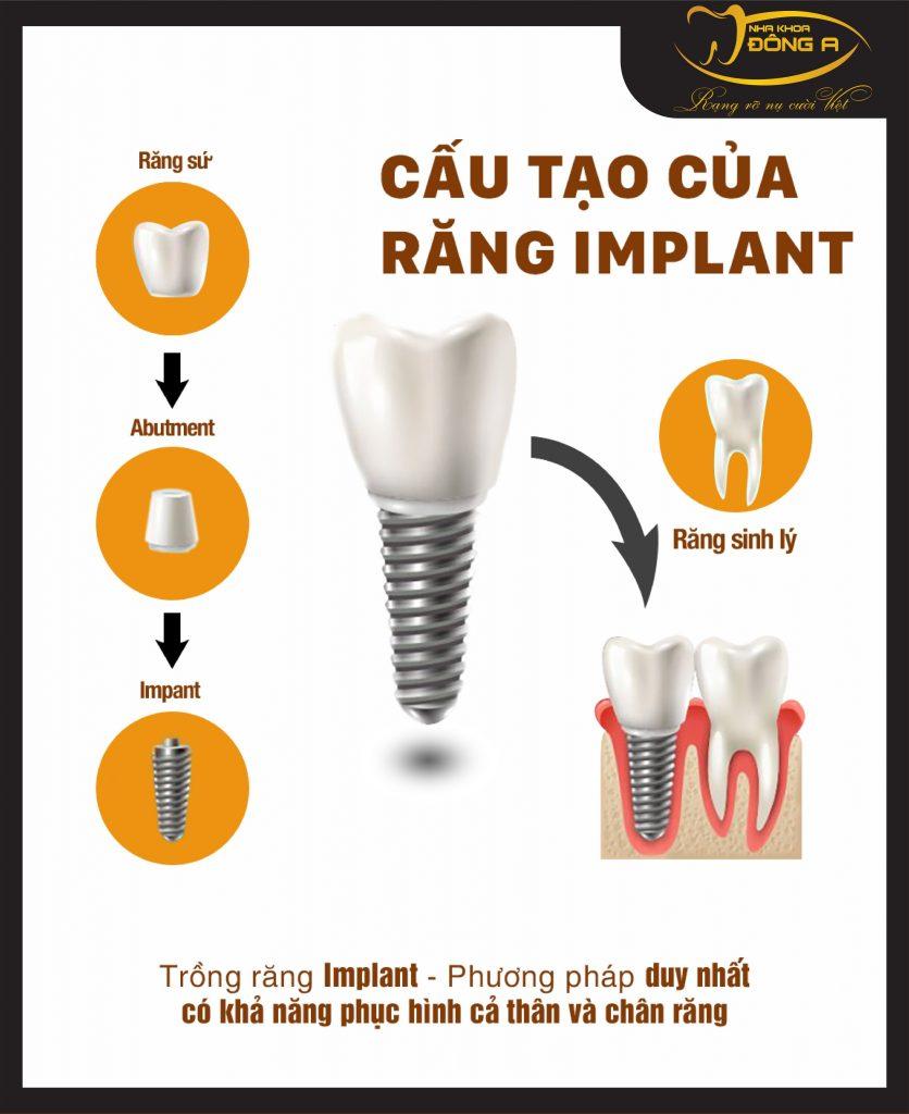Cau Tao Tru Than Implant