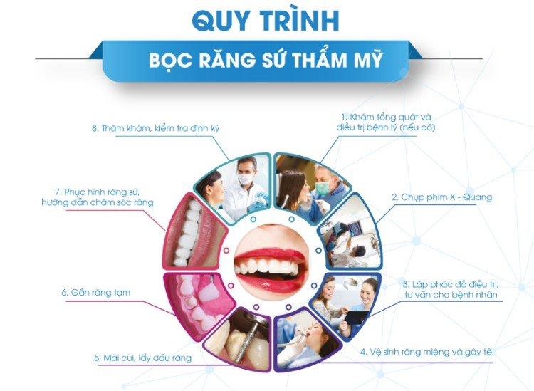 Quy Trinh Boc Rang Su Tham My X750