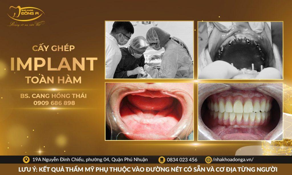 Truoc Sau Cay Ghep Trong Rang Implant Toan Ham Tren Bs Thai Khach Hang Nha Khoa