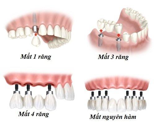 Truong Hop Mat Rang De Trong Implant Nha Khoa