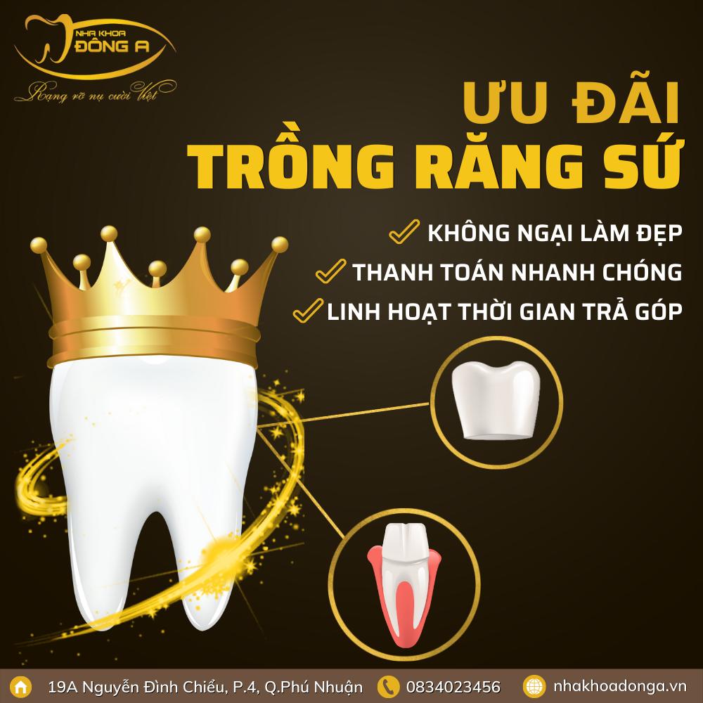 phuong-thuc-dang-ky-trong-rang-su