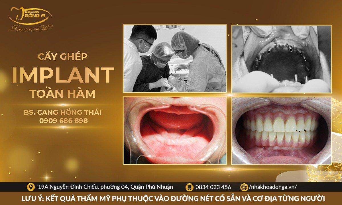cay-ghep-implant-toan-ham