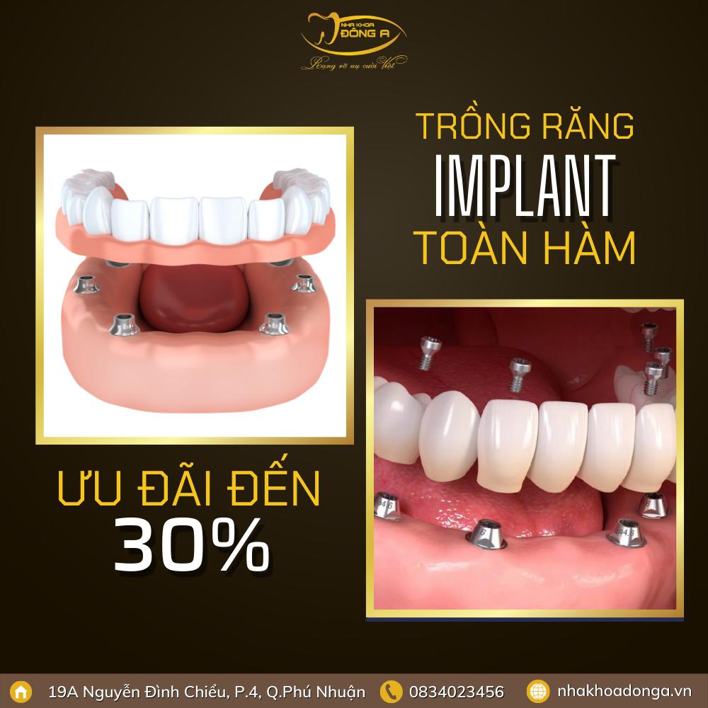 Implant Toan Ham