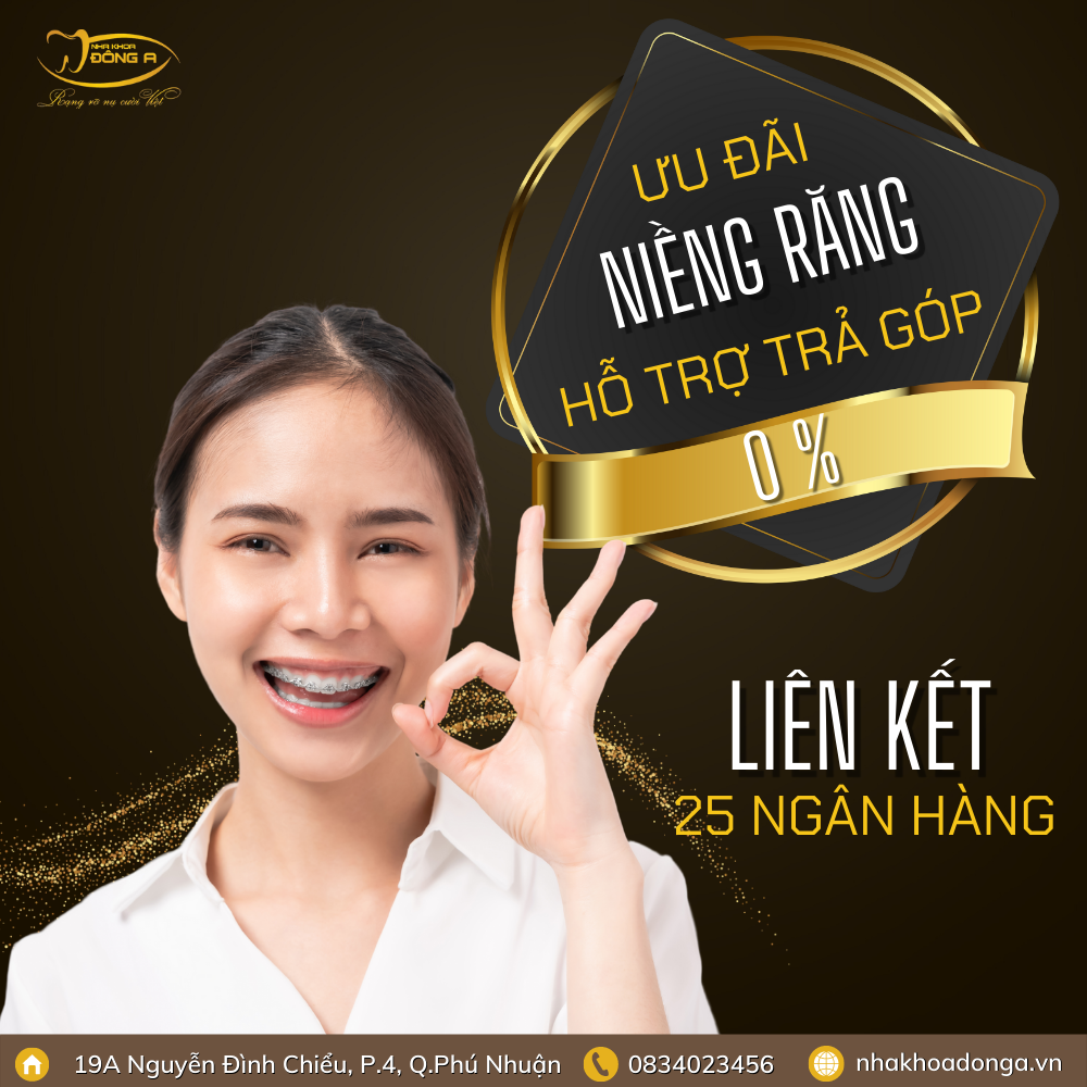 Phuong-Thuc-Dang-Ki-Tra-Gop