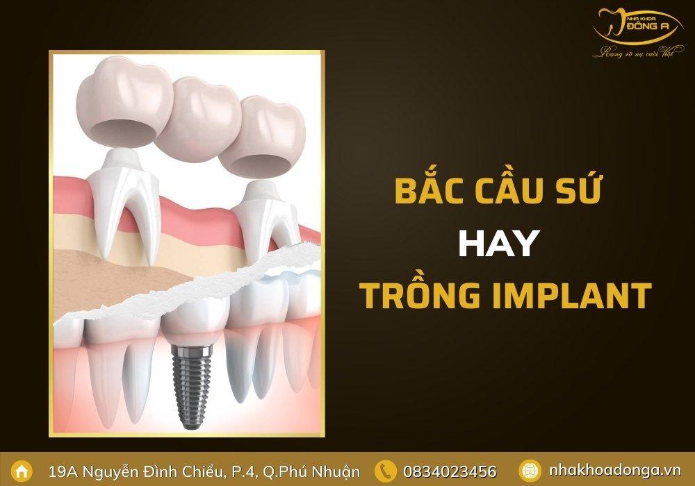 bac-cau-su-hay-trong-rang-implant