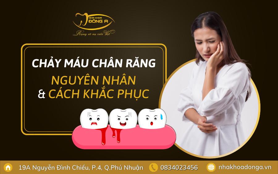 Chay Mau Chan Rang Dai Dien
